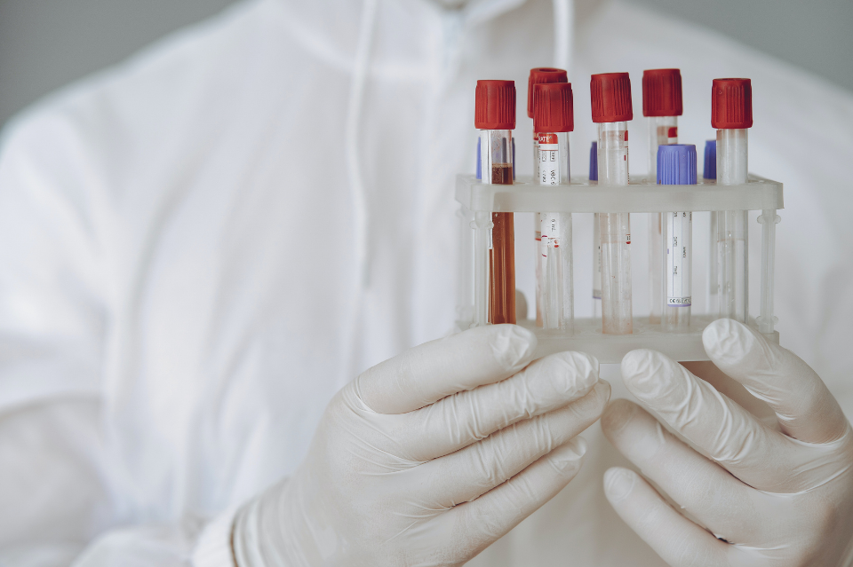 ABC testowania. Jaki test na koronawirusa wybrać i kiedy go wykonać?